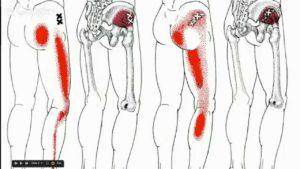 Боль в спине люмбоишалгия