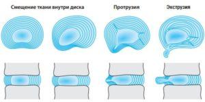 протрузия, грыжа диска