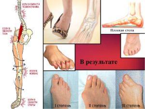 симптомы заболевания голеностопного сустава