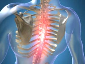 Остеохондроз грудного отдела позвоночника
