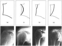 стадии артроза плечевого сустава
